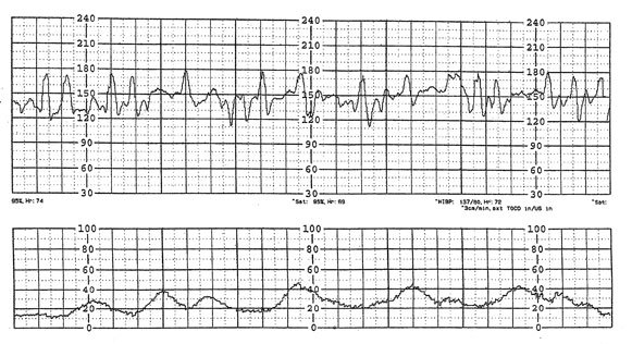 how to read fetal heart monitor
